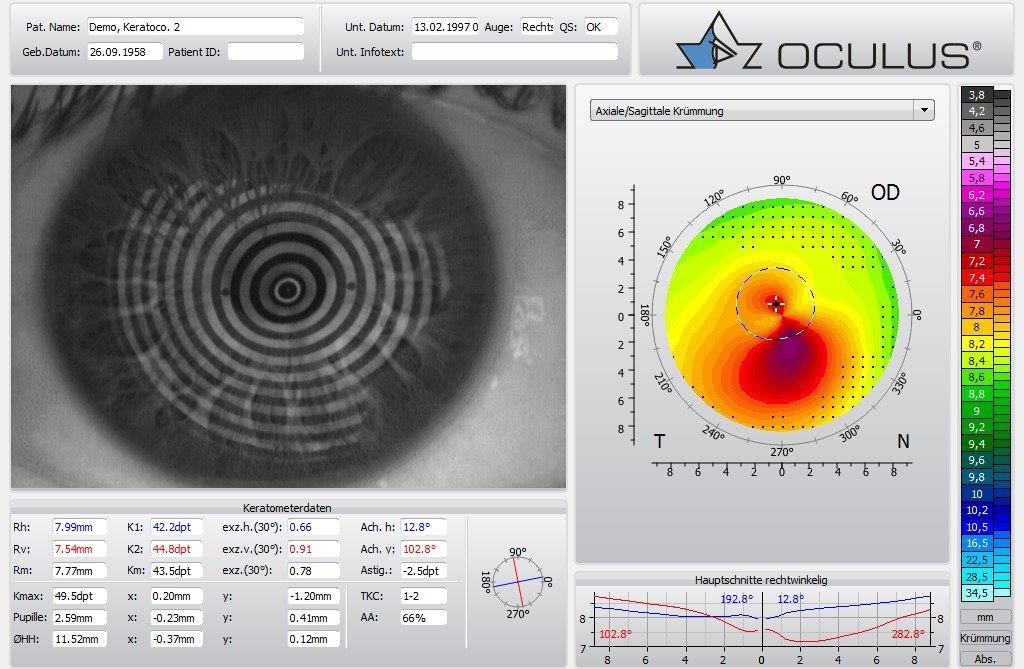 Augenoptisches und optometrisches Zentrum Optik Mattern - Ihr Optiker in Wiesloch und Sandhausen. Bei Optik Mattern wird die Augenform mit modernsten computergesteuerten Messgeräten ermittelt.