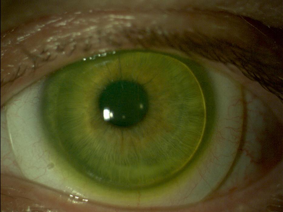 Augenoptisches und optometrisches Zentrum Optik Mattern - Ihr Optiker in Wiesloch und Sandhausen. Sklerallinsen eigenen sich insbesondere für Contactlinsenträger mit krankhaften Veränderungen der Hornhaut, Hornhautverletzungen sowie bei extremer Trockenheit der Augen.