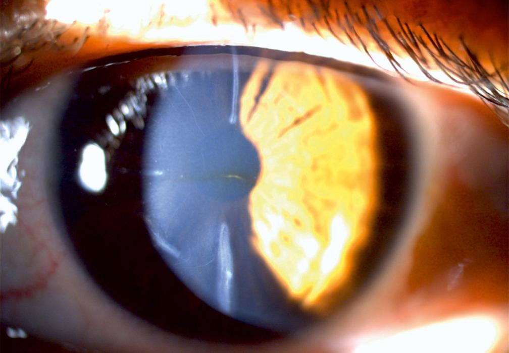 Augenoptisches und optometrisches Zentrum Optik Mattern - Ihr Optiker in Wiesloch und Sandhausen. Sklerallinsen eigenen sich bei unregelmäßiger Hornhaut und trockenen Augen.