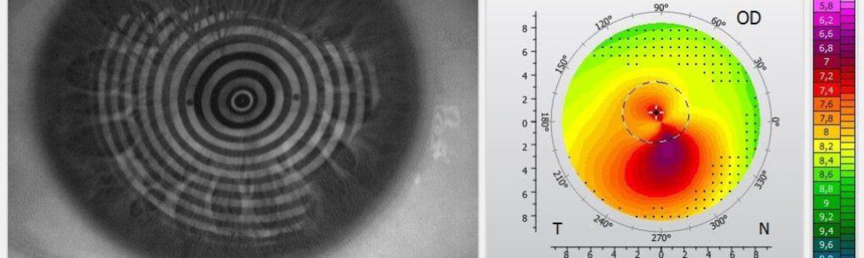 Augenoptisches und optometrisches Zentrum Optik Mattern - Ihr Optiker in Wiesloch und Sandhausen. Bei Keratokonus sollte man sich vom Contactlinsenspezialisten beraten lassen.