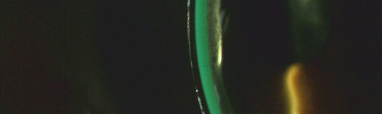 Augenoptisches und optometrisches Zentrum Optik Mattern - Ihr Optiker in Wiesloch und Sandhausen. Sklerallinsen können grundsätzlich von allen Contactlinsenträgernverwendet werden.