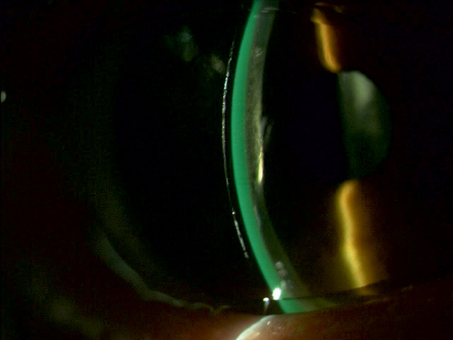Augenoptisches und optometrisches Zentrum Optik Mattern - Ihr Optiker in Wiesloch und Sandhausen. Sklerallinsen liegen nicht direkt auf der Hornhaut auf, sondern stützen sich auf der Bindehaut ab.